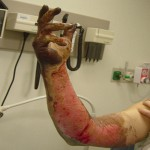 Arc Flash caused Injury